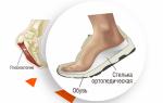 Зимние ортопедические стельки — советы экспертов по выбору