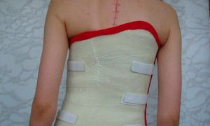 Корсет после операции на позвоночнике – советы экспертов
