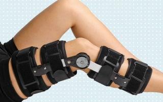 Ортез для коленного сустава — выбираем коленный ортез