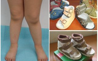 Ортопедическая обувь для детей при вальгусной деформации