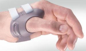 Ортез на большой палец руки — советы экспертов