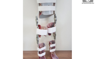 Аппарат на нижние конечности и туловище — выбираем ортез