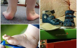 Ортопедические сандали для детей – как выбрать и не ошибиться