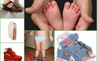 Ортопедическая обувь для детей — лечение и профилактика болезней