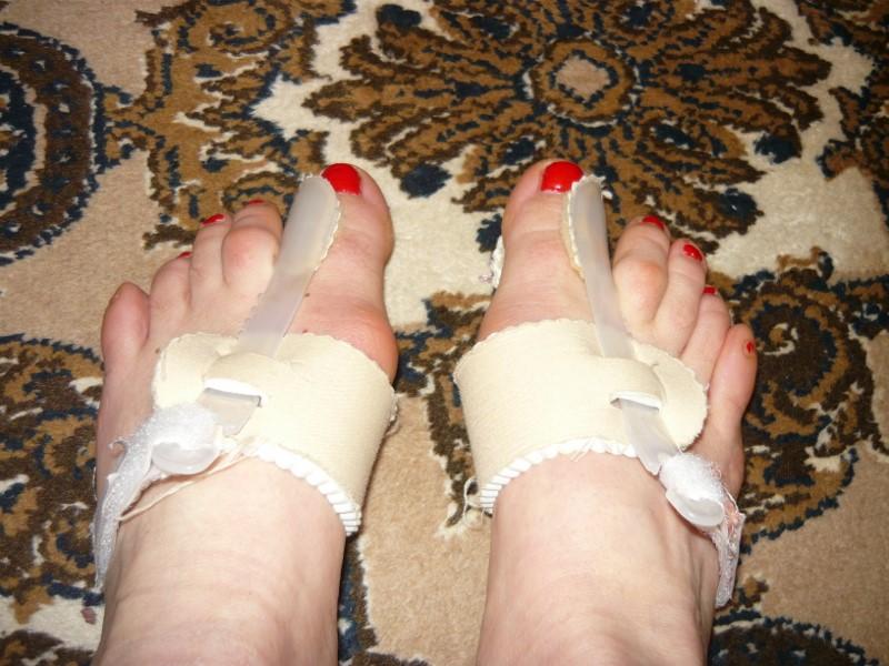 Ночной фиксатор для коррекции косточки на ноге